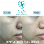 Before After - PRP (1x), Microneedling, BSL Removal (1x)