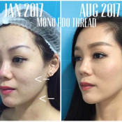 Before After - Mono PDO Thread Lifting