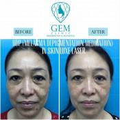 Before After - ODP (Melasma Depigmentation Medication) & Skinluxe Laser