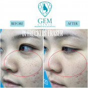 Before After - Q- switched Nd-Yag laser for Freckles