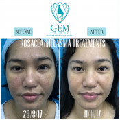 Before After - Rosacea, Melasma Treatments