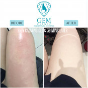 Before After - Skin Calming Gel