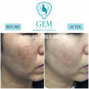 Before After - Skinluxe Laser & PRP
