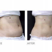 Before and After - CLATUU Fat Freezing