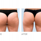 Before and After - Coolsculpting