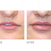 Before and After - Derma Filler