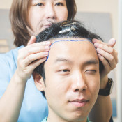 Hairsmith Clinic - Consultation