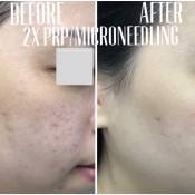Before After - PRP (2x), Microneedling