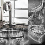 Oasis Dental Ara Damansara - Digital Panaromic & Cephalogram Xray Machine