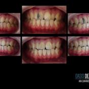 Oasis Dental Ara Damansara - Composite resin bonding
