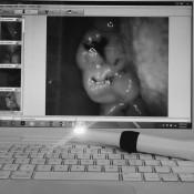 Oasis Dental Ara Damansara - Demonstration with an intraoral camera