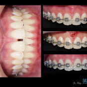 Oasis Dental Ara Damansara - Braces & frenectomy