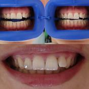 Oasis Dental Ara Damansara - Tooth Jewelry