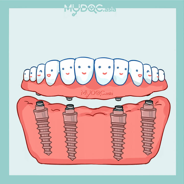 All on Four Dental Implant