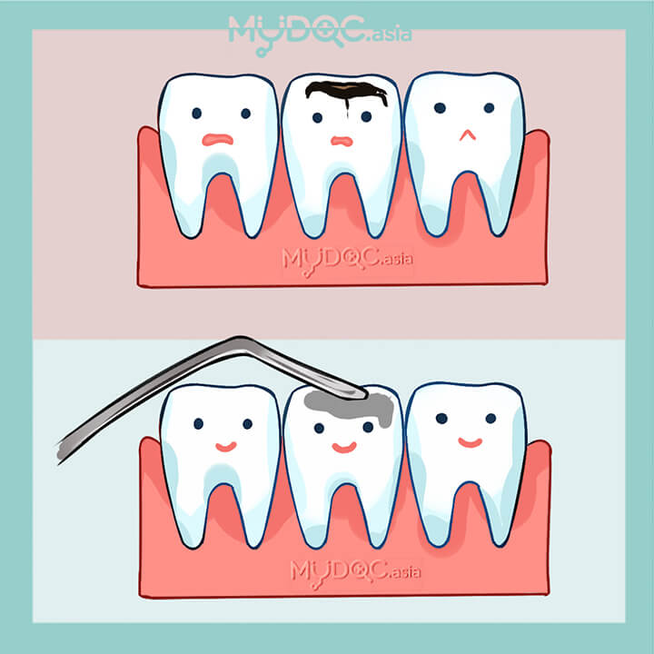 Amalgam Fillings