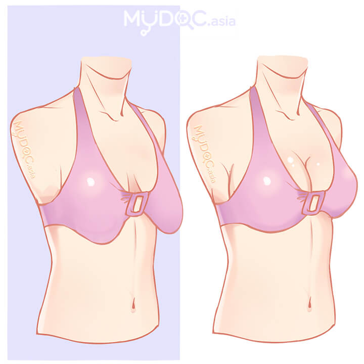 breast do lifts much cost How
