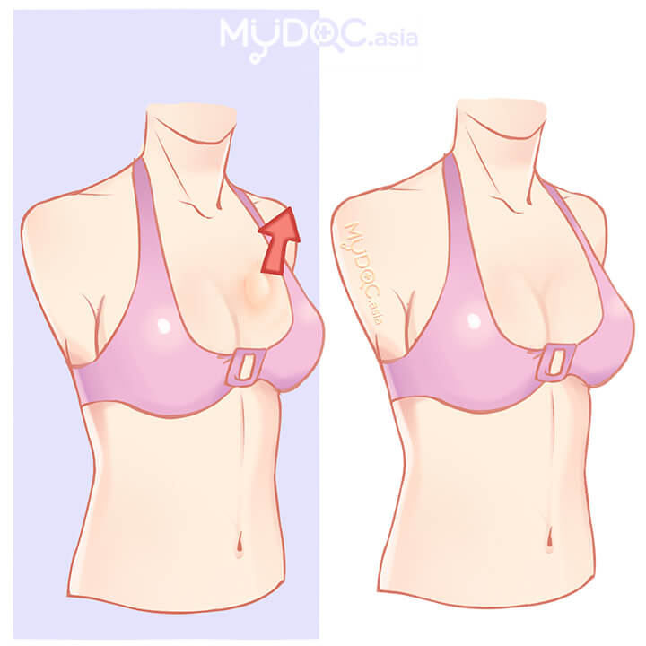 Breast Lump Removal Surgery (Lumpectomy)