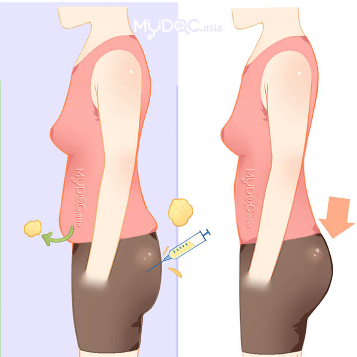 Buttock enlargement with fat transfer