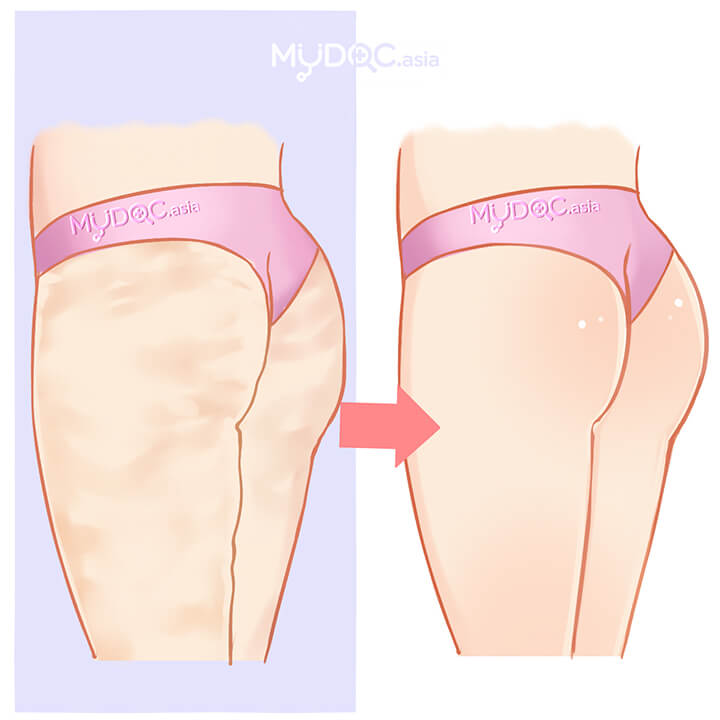 Cellulite Treatment (Buttocks)