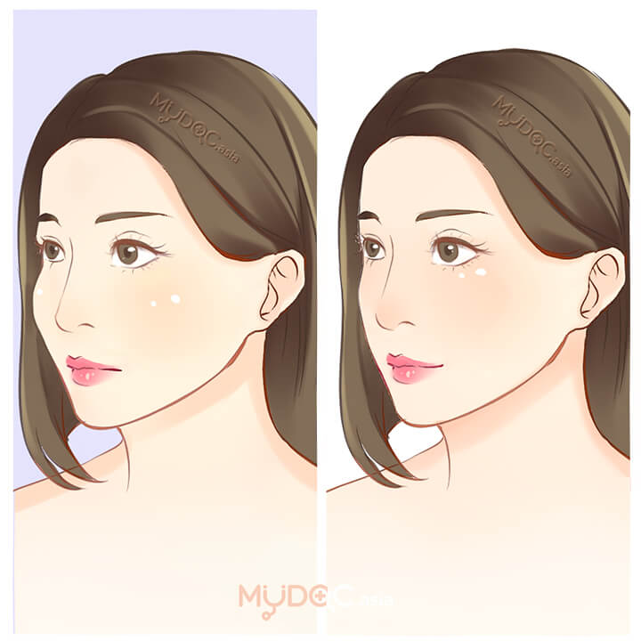 Cheek Bone Reduction / Facial Bone Reshaping