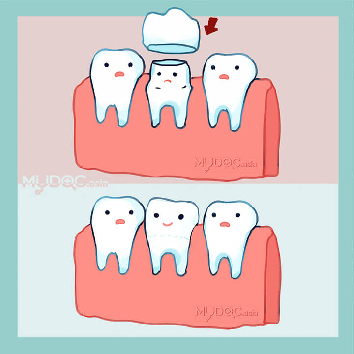 Teeth Crown (Dental Crown)