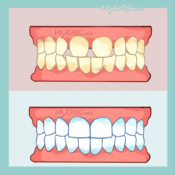 Dental Rehabilitation