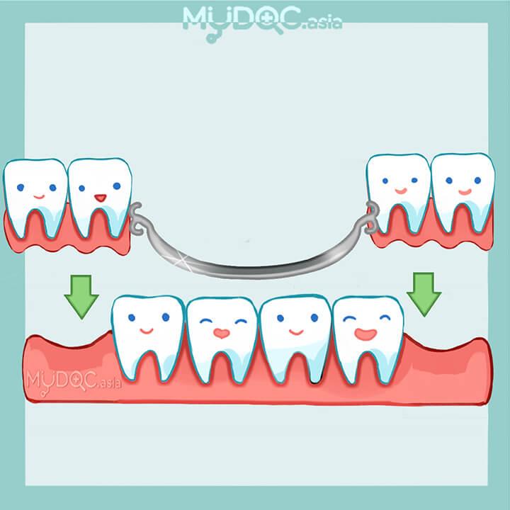 Top 4 Dentures (False Teeth) in Klang - Price Guide & Reviews