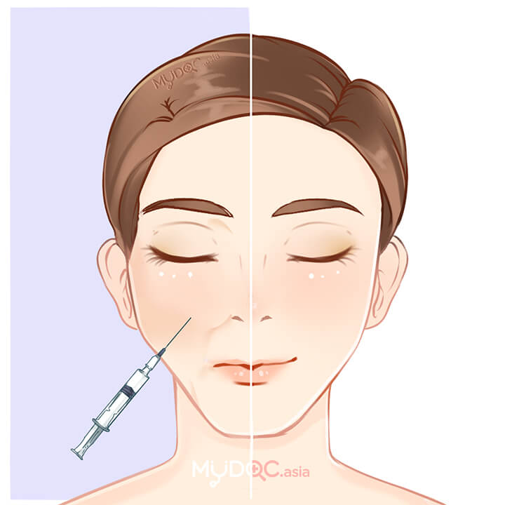 80 Best Dermal Fillers in Malaysia - Price Guide & Reviews