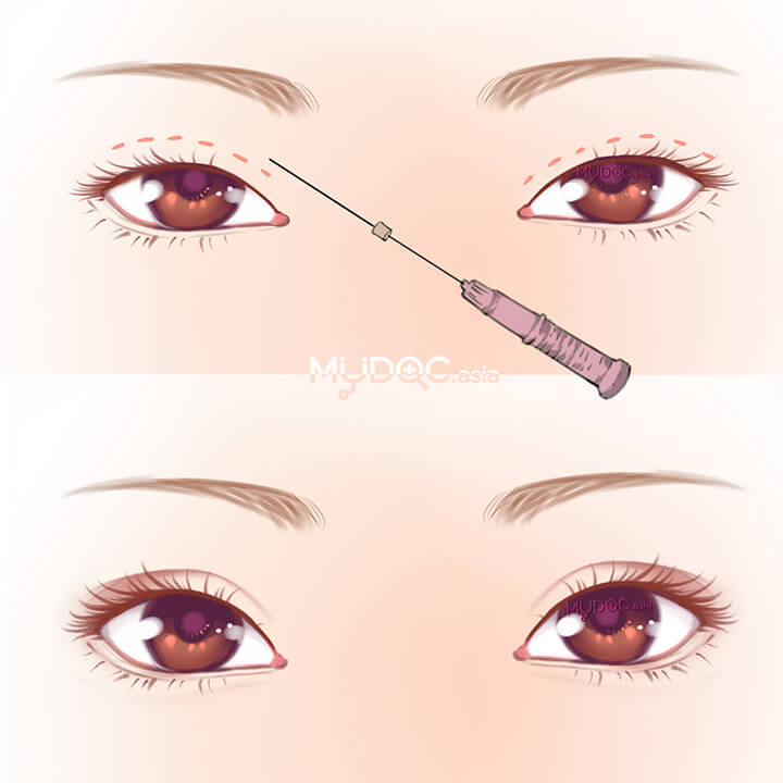 Double Eyelid Stitching (Non-Surgical)