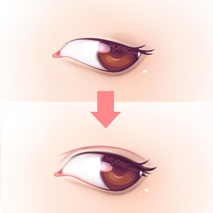 Double Eyelid Treatment