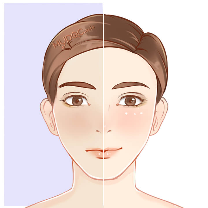 Dull Skin Treatment