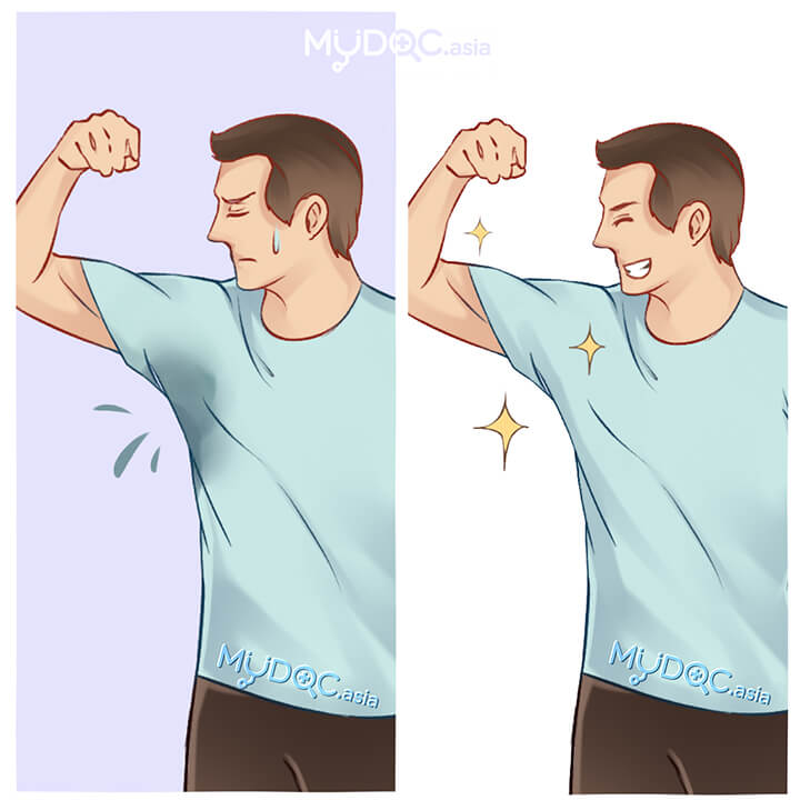 Excessive Sweating (Hyperhidrosis) Treatment