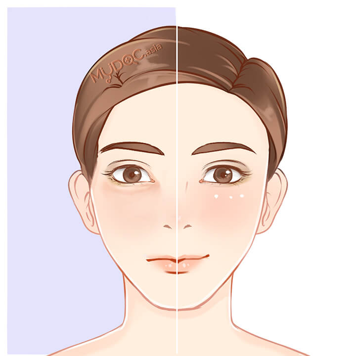 Eye Bag Revision Surgery