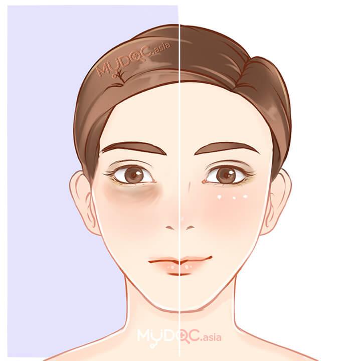Eyebag Treatment