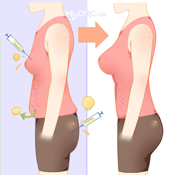 Fat Transfer (Fat Grafting)