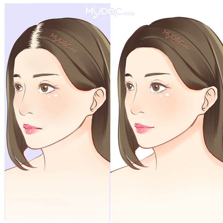 Treatment for Female Pattern Baldness
