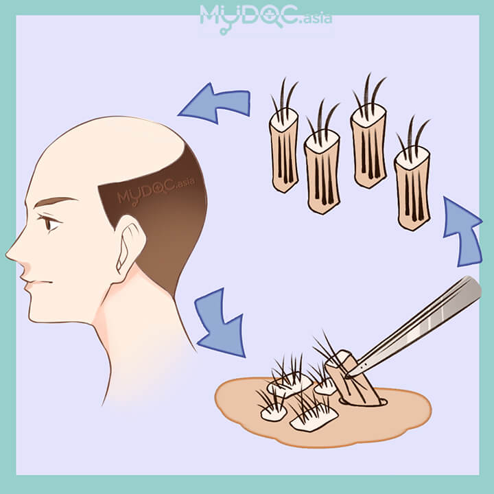 Rawatan Follicular Unit Extraction (FUE)
