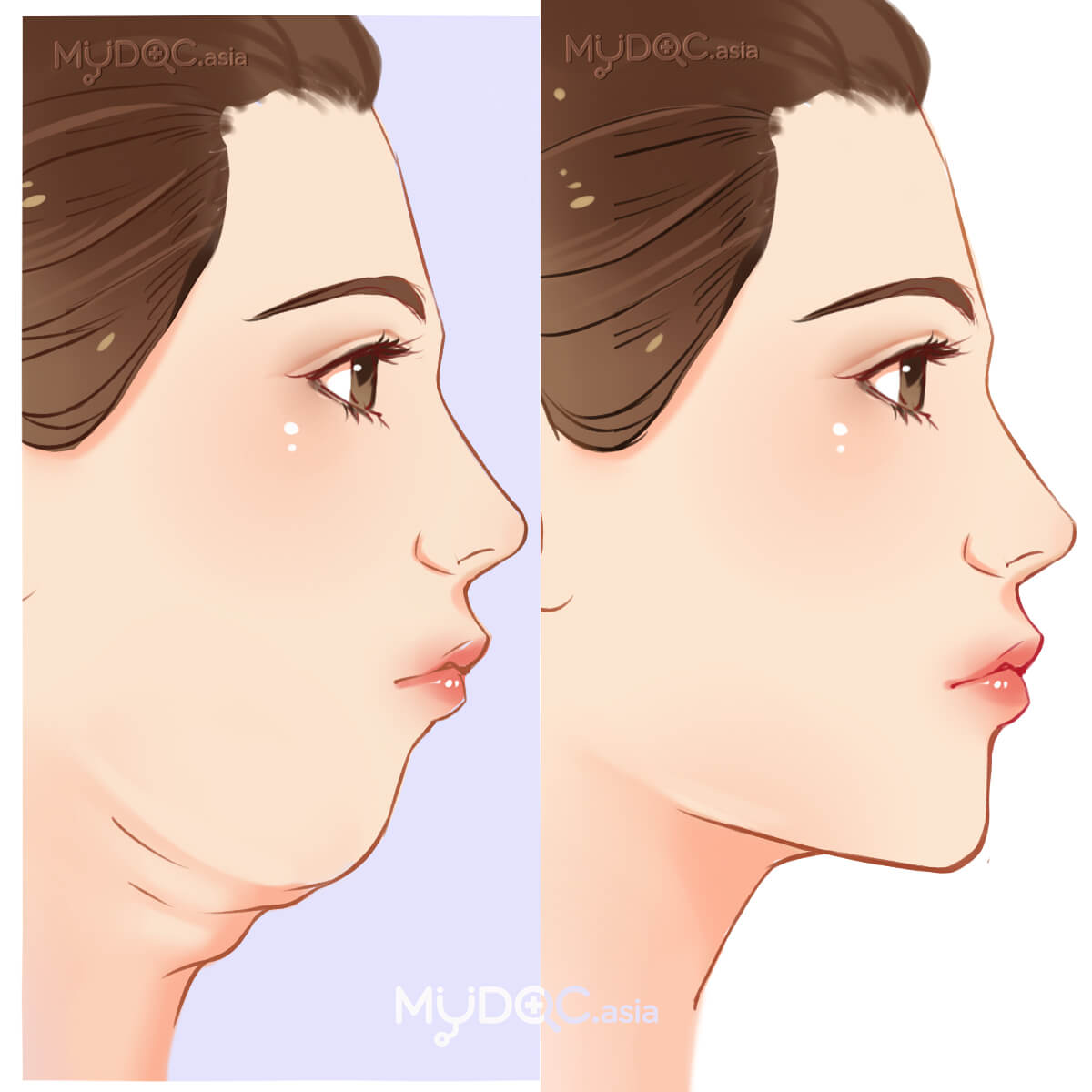 Genioplasty (Chin Surgery)