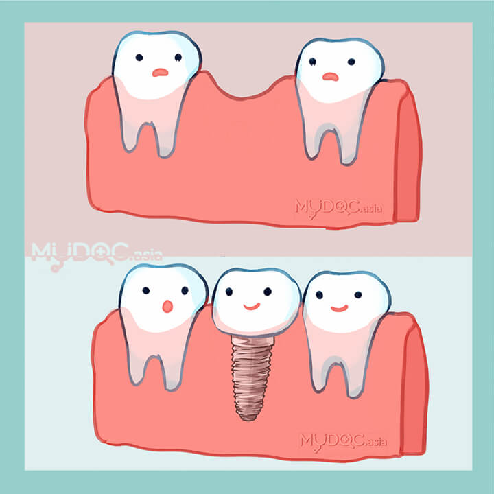 Implant Dentist Consultation