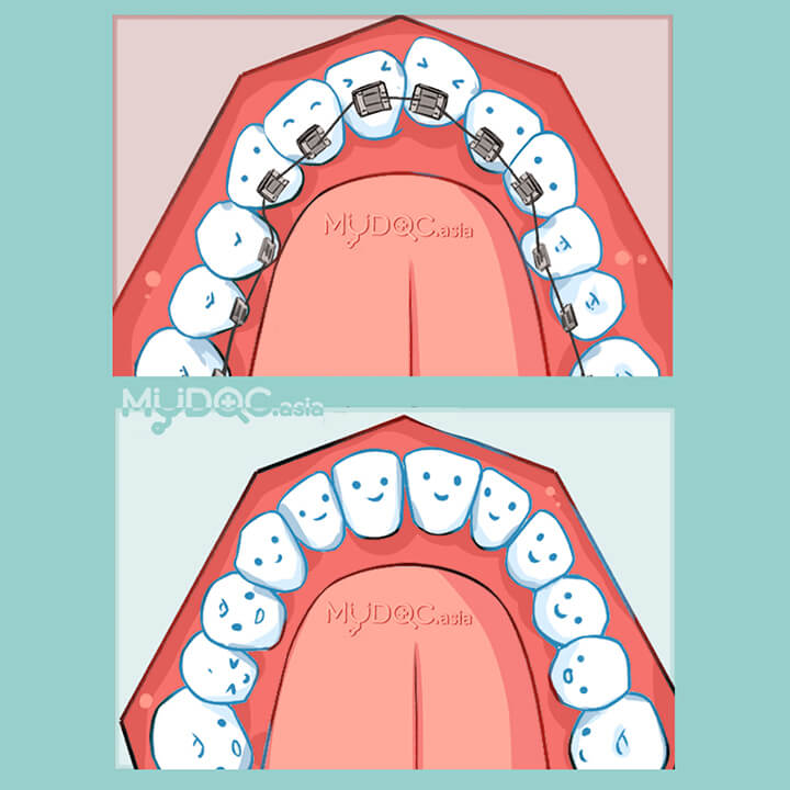 Lingual Braces (Invisible Braces)