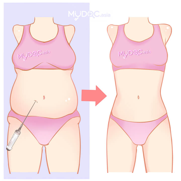 Liposuction (Back without Waist)