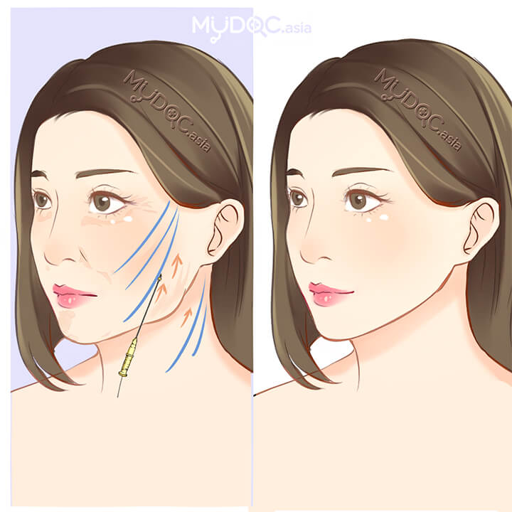 Top 3 Non-Surgical Facelift in Penang - Price Guide & Reviews