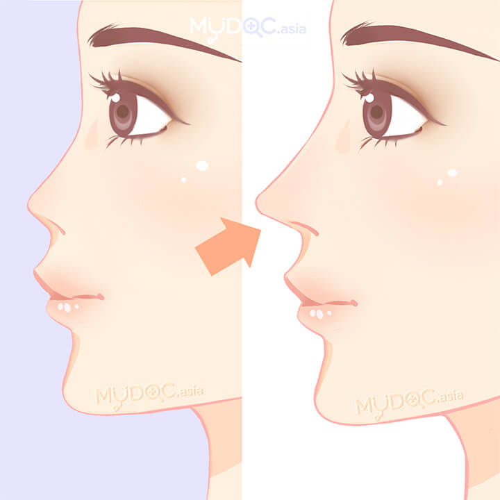 Nose Shape Treatment