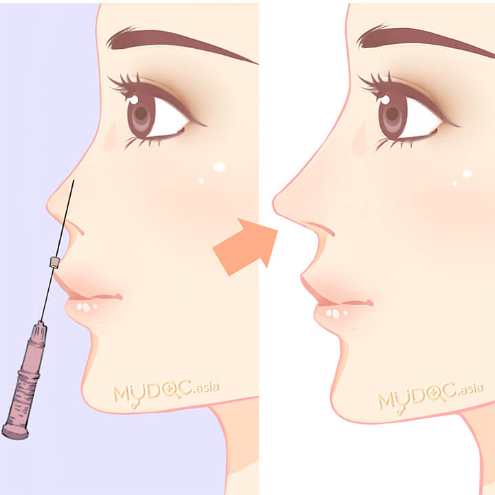 20 Best Nose Thread Lift in Kuala Lumpur - Price Guide & Reviews