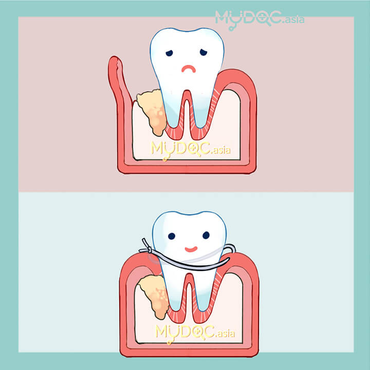Periodontal Regeneration