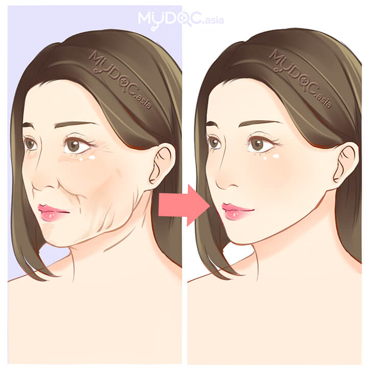 Loose Skin Treatment (Sagging Skin)