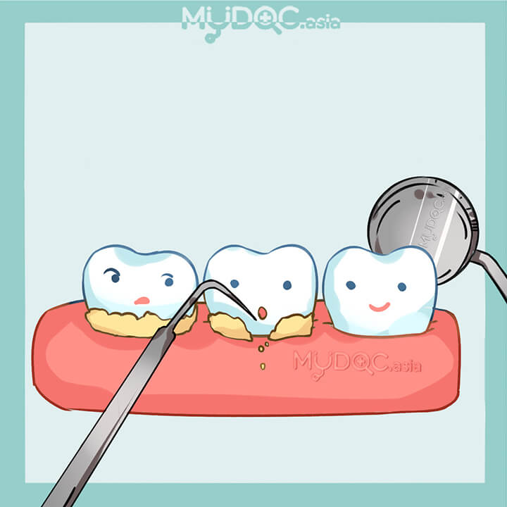 Scaling and Polishing (Teeth Cleaning)