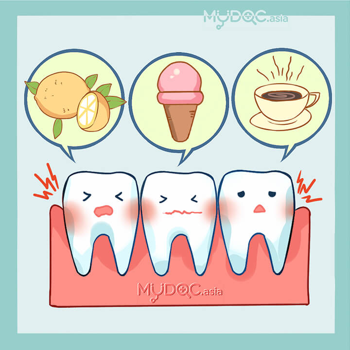 Sensitive Teeth Treatment