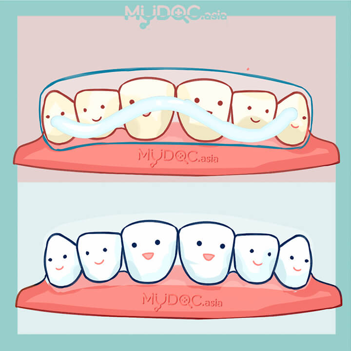 Best Teeth Whitening Kits Home Based In Malacca Price Guide