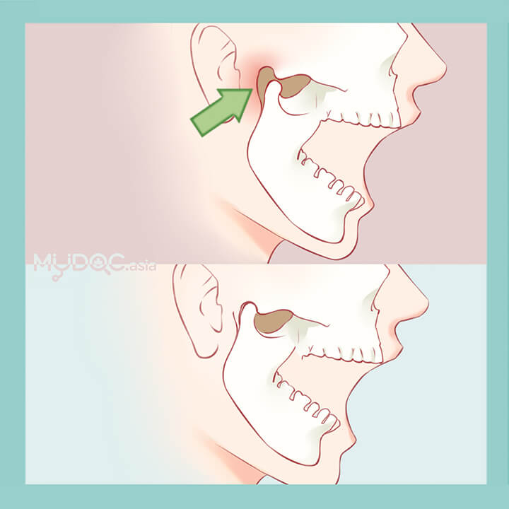 Temporomandibular Joint Treatment (TMJ)